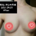 垂れ乳を上向きバストへ変える方法とは?